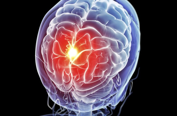 Even Mild TBI May Cause Brain Damage