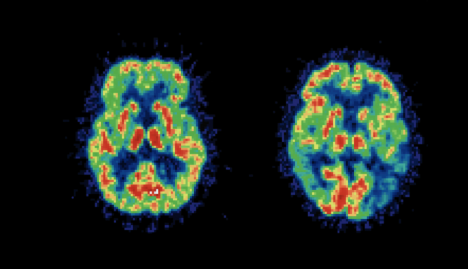 Brain Scans May Predict Efficacy of CBT for Social Anxiety Disorder