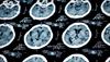 Protecting the Brain:  The Damaging Impact of Traumatic Brain Injury