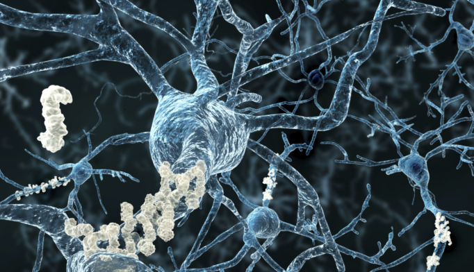 Tau, Not Amyloid, Protein Buildup May Cause Alzheimer's