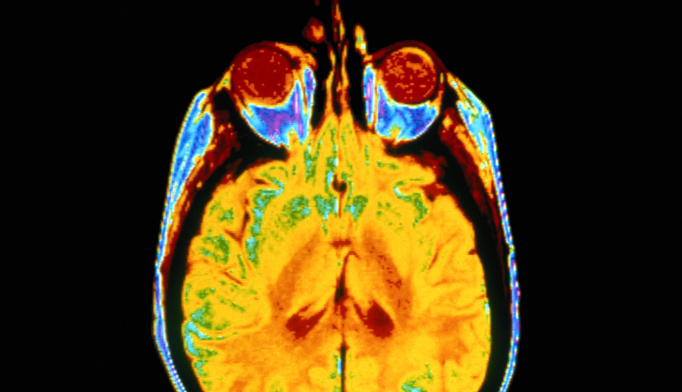 Damage To Brain's White Matter Could Be Early Alzheimer's Sign