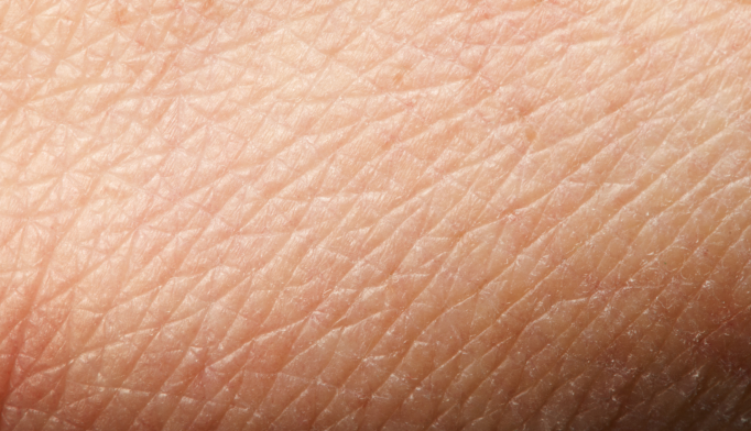 Skin Test Could Help Diagnose Alzheimer's, Parkinson's