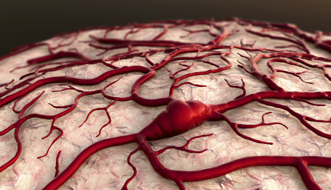 Alzheimer's Disease May Have Roots in Vascular System