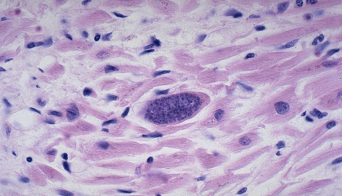 Targeting Common Parasite Could Help Treat Certain Mental Disorders