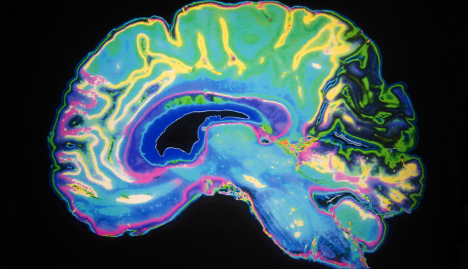 Digital 'Atlas' of Aging Brain Could Help Diagnose Alzheimer's Earlier