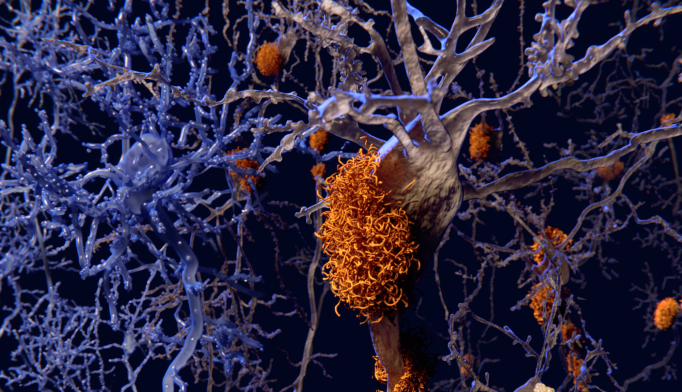 Alzheimer's Trial: Solanezumab Fails Primary End Point