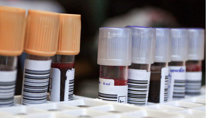Early Alzheimer's Detection Possible With New Blood Test