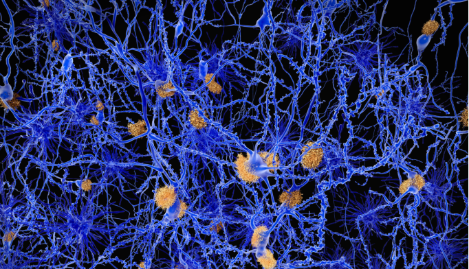 Brain's Immune System May Eliminate Alzheimer's Amyloid