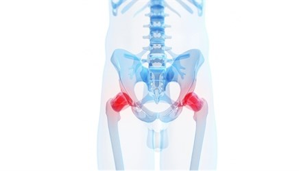 Radiographs not reliable for detecting hip osteoarthritis