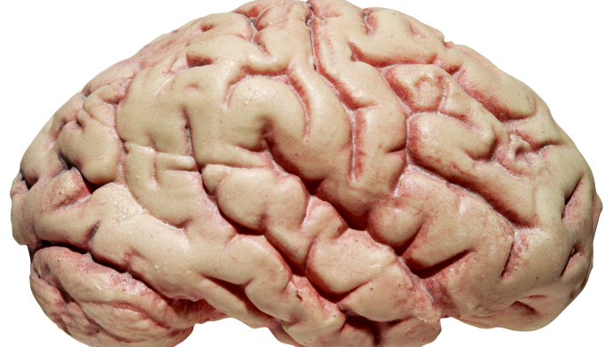 Traumatic Brain Injury May Contribute to Amyloid Buildup
