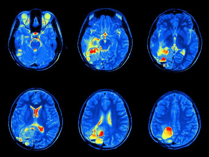 Schizophrenia and Fatty Acids forecast
