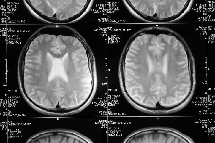 Abnormal MRI and CSF Findings May Predict Risk for Alzheimer Disease