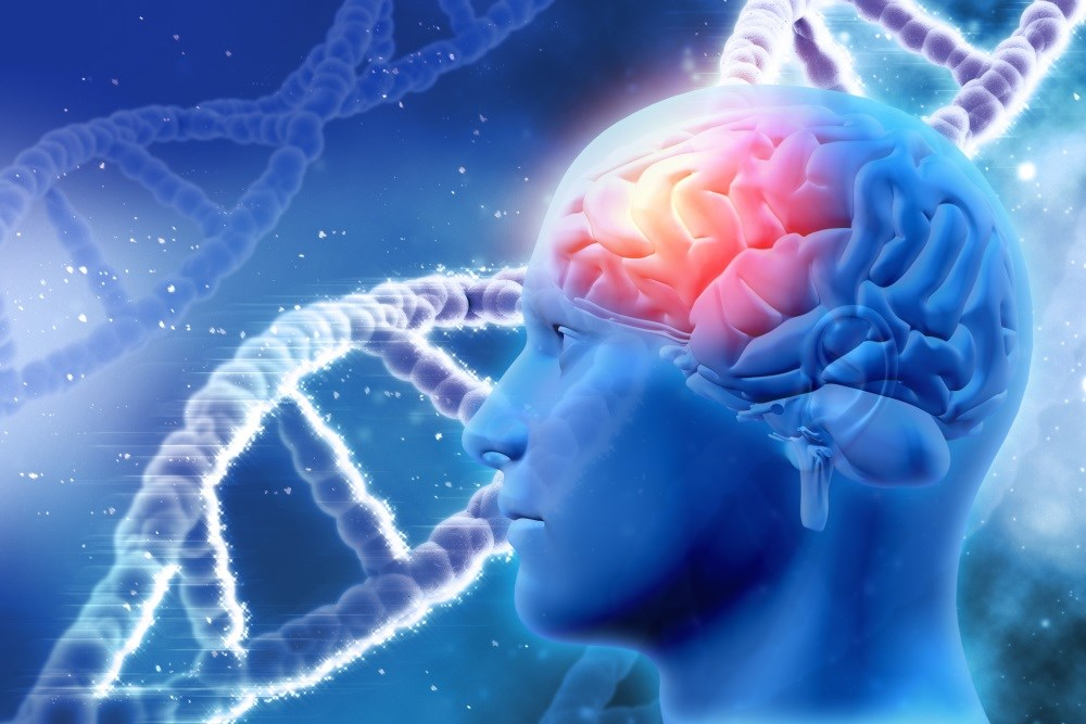 Psychosis in Alzheimer's Disease Induced by Female-Specific Gene