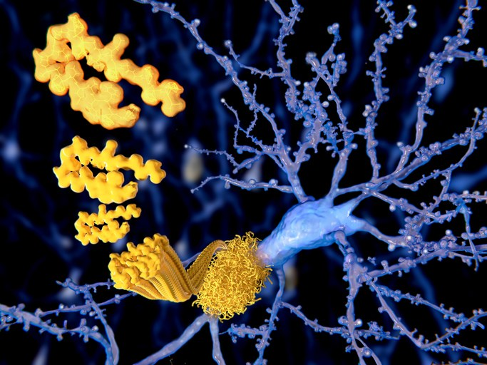 Alzheimer's Disease More Associated With Vascular Risk Factors in Mid-Life Than Later Life