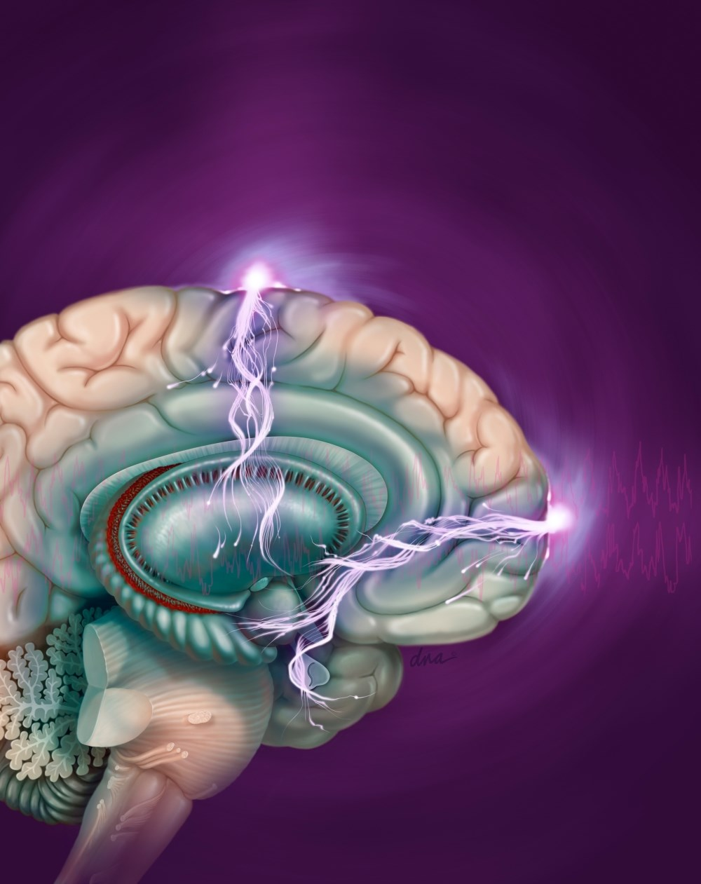 A current study investigated the effectiveness and cognitive effect of electroconvulsive therapy in conjunction with pharmacotherapy.