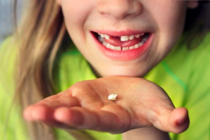 ASD Linked to Prenatal Metal Exposure According to Baby Teeth Findings
