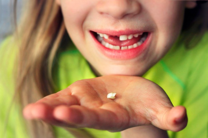 Baby teeth from children with ASD contain more toxic lead and less of the essential nutrients manganese and zinc.