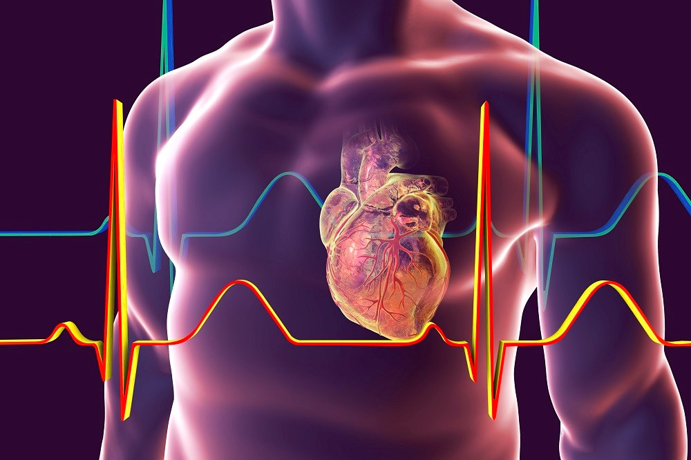 Depression Screening Tools Accurate in Post-Acute Coronary Syndrome