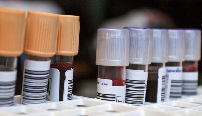 Proteins Identified for Alzheimer's Blood Test
