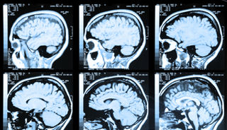 MRI Can Detect Early Stages of Alzheimer's Disease