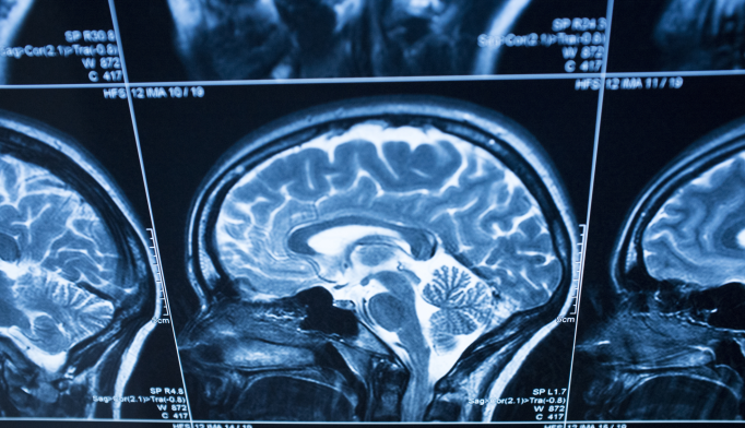 Alzheimer's Biomarker Possible With MRI Scan