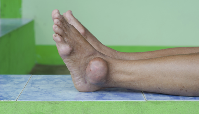 Gout May Lower Risk for Developing Alzheimer's Disease