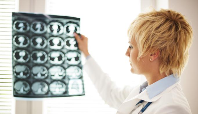Brain Pathways Deteriorate in Alzheimer's Disease