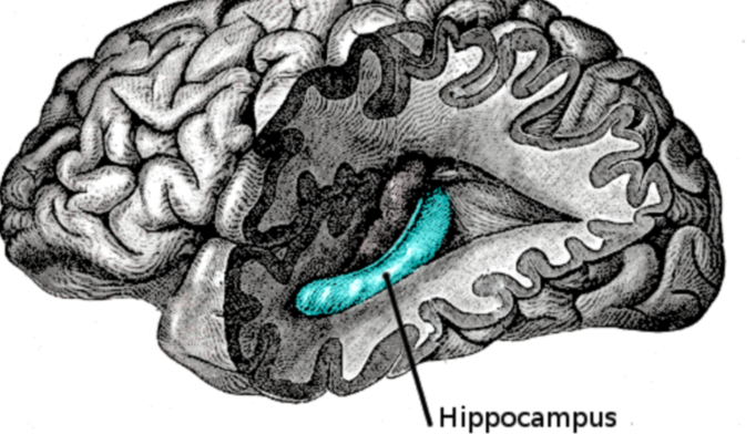 Someone whose hippocampus stayed the same size was nearly 6 times more likely to develop Lewy body dementia.