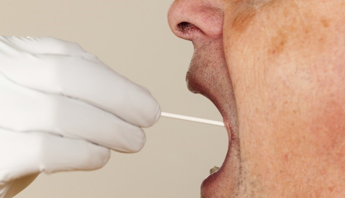 Metabolites detected in saliva test can be added to the diagnostic armamentarium in Alzheimer's disease.