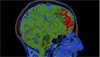 Cognitive Dysfunction Evaluated by fMRI in Non-Neuropsychiatric SLE
