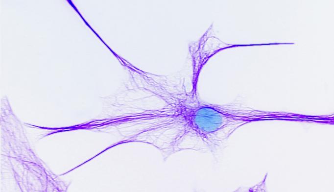bipolar brain cells