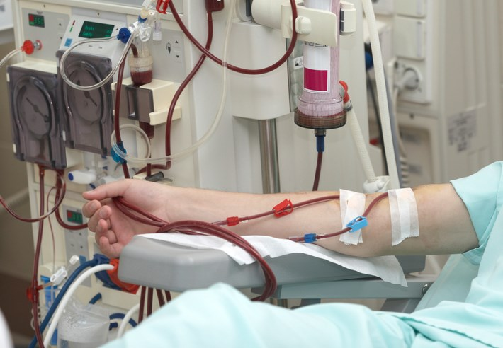 Depression Often Untreated in Dialysis Patients