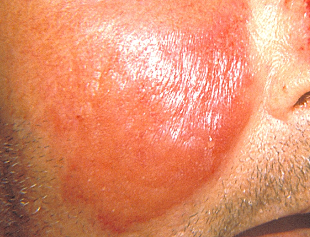 Benzathine penicillin G 1.2 MU once every 3 weeks is an effective and well-tolerated prophylaxis of recurrent erysipelas. <i>Photo Credit: CDC/ Dr Thomas F. Sellers, Emory University.</i>