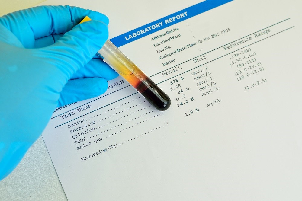 Low Serum Sodium Linked to Cognitive Decline in Older Men