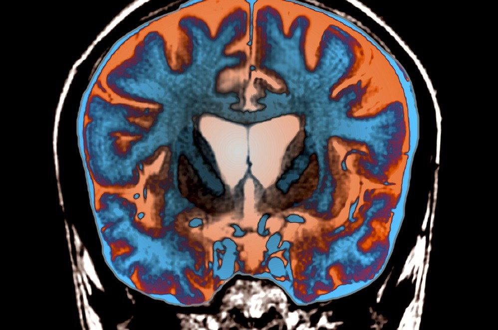 Apathy Associated With Lower Health-Related Quality of Life in Huntington Disease