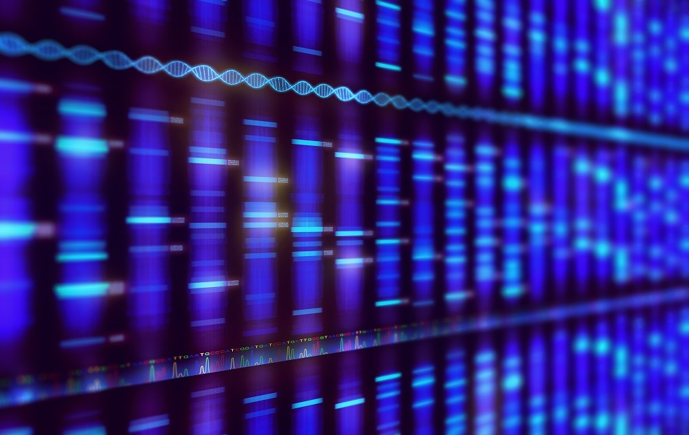 Genomic Screening Can ID Undetected BRCA1/2 Cancer Risk