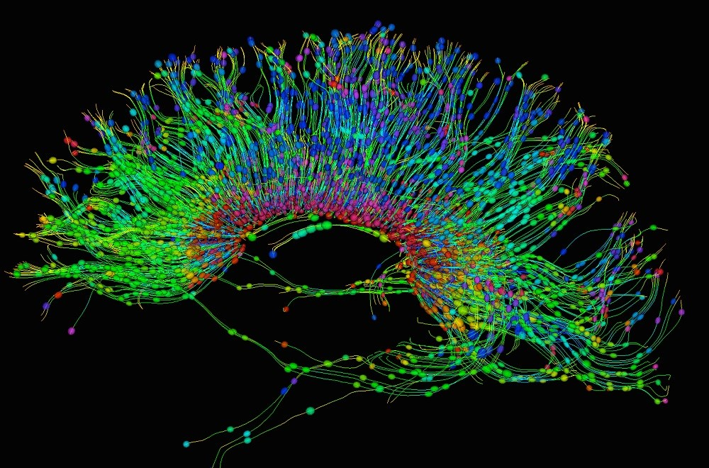 Greater Neural Connectivity Provides Resilience to Major Depressive Disorder