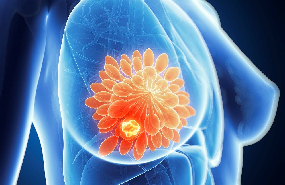 Over half of the patients in the SMaRT Oncology-2 study had breast cancer.