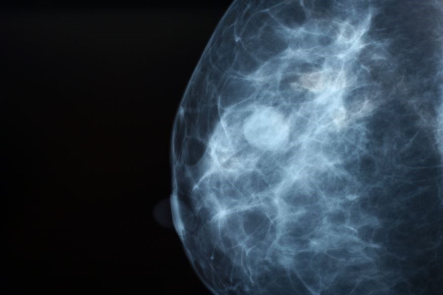 Pooled analysis showed that schizophrenia was associated with a significantly increased risk of breast cancer incidence in women.