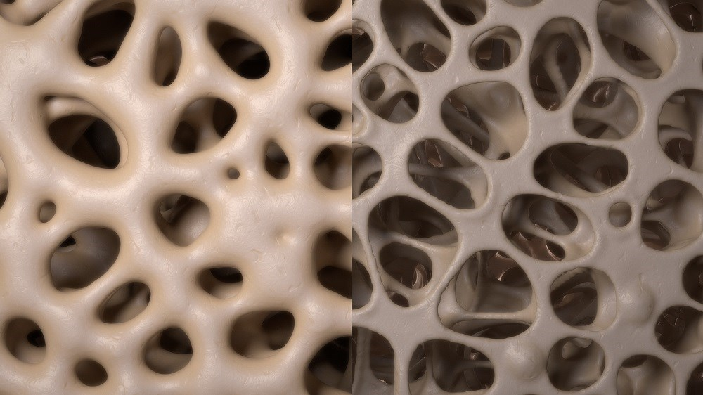 Bone Mineral Density Improved With Intravenous Ibandronate in Osteoporosis