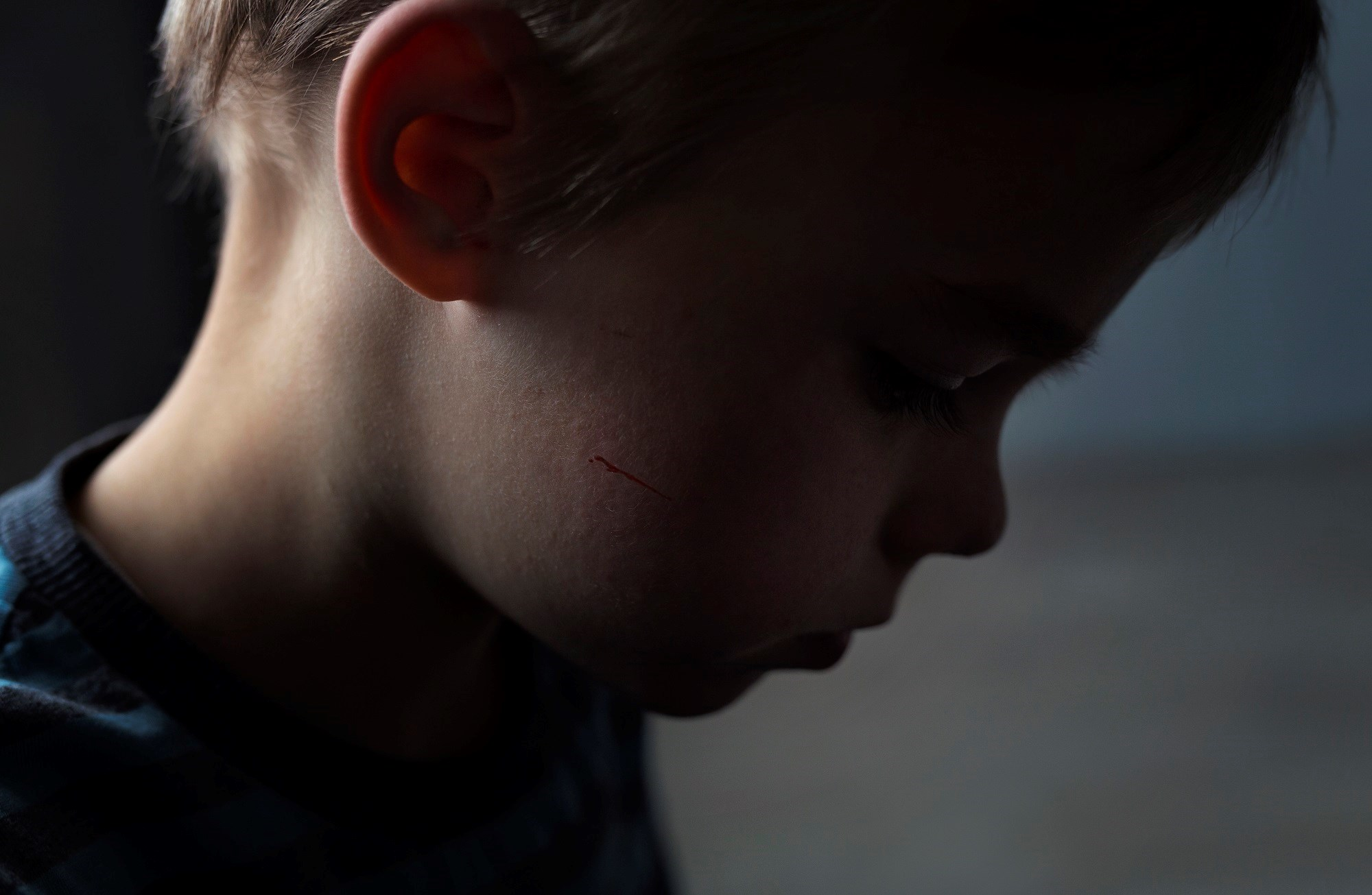 Depression in early childhood bears behavioral and brain similarities to depression in adolescents and adults, but few interventions have been substantiated for that age group.