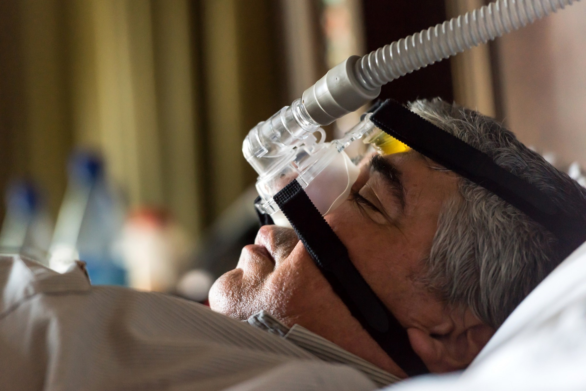 Obstructive sleep apnea is associated with changes to the structure of the brain that are seen in the early stages of dementia.
