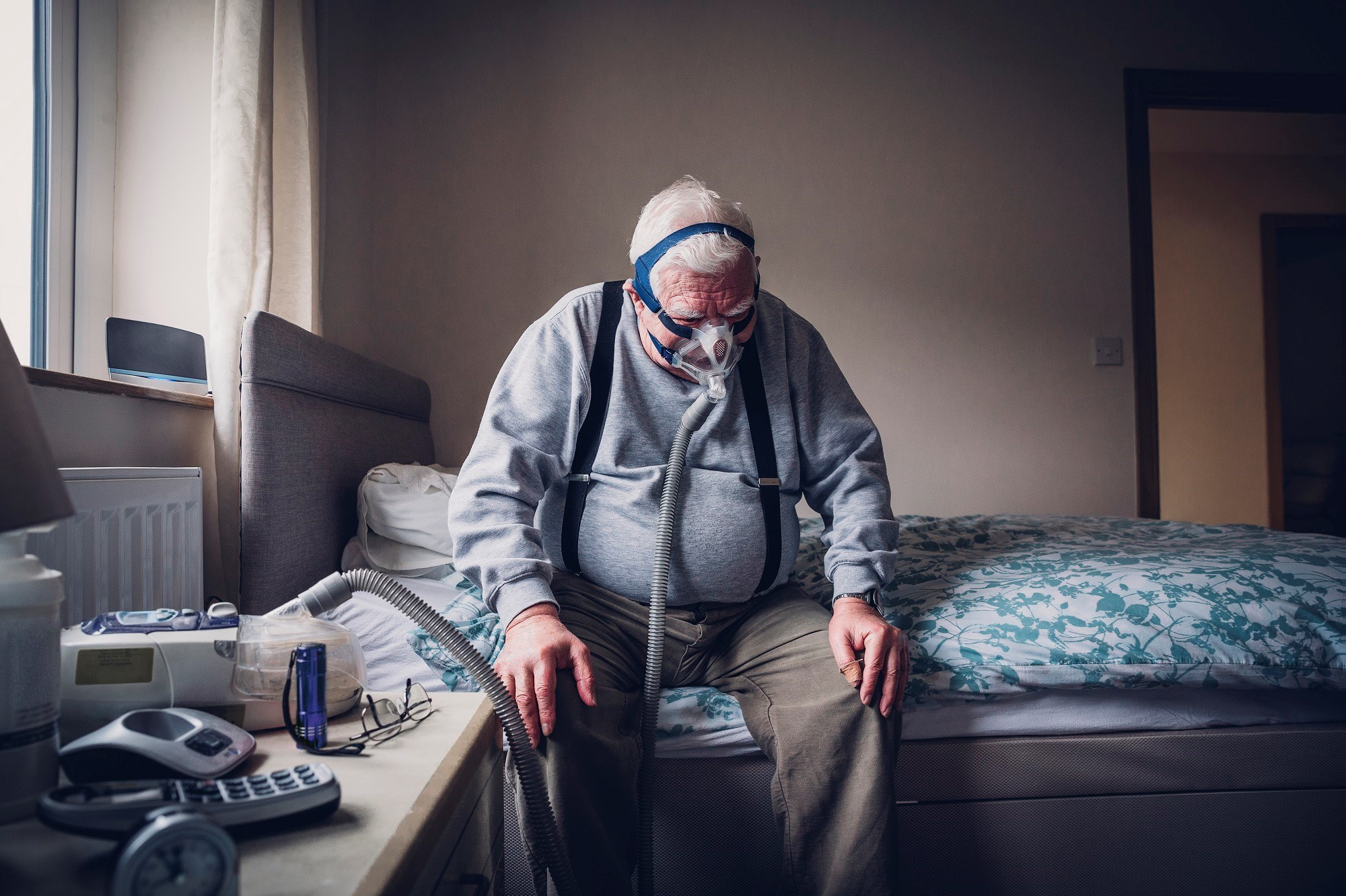 Fatigue a Potential Indicator of Overlapping Sleep Apnea and COPD