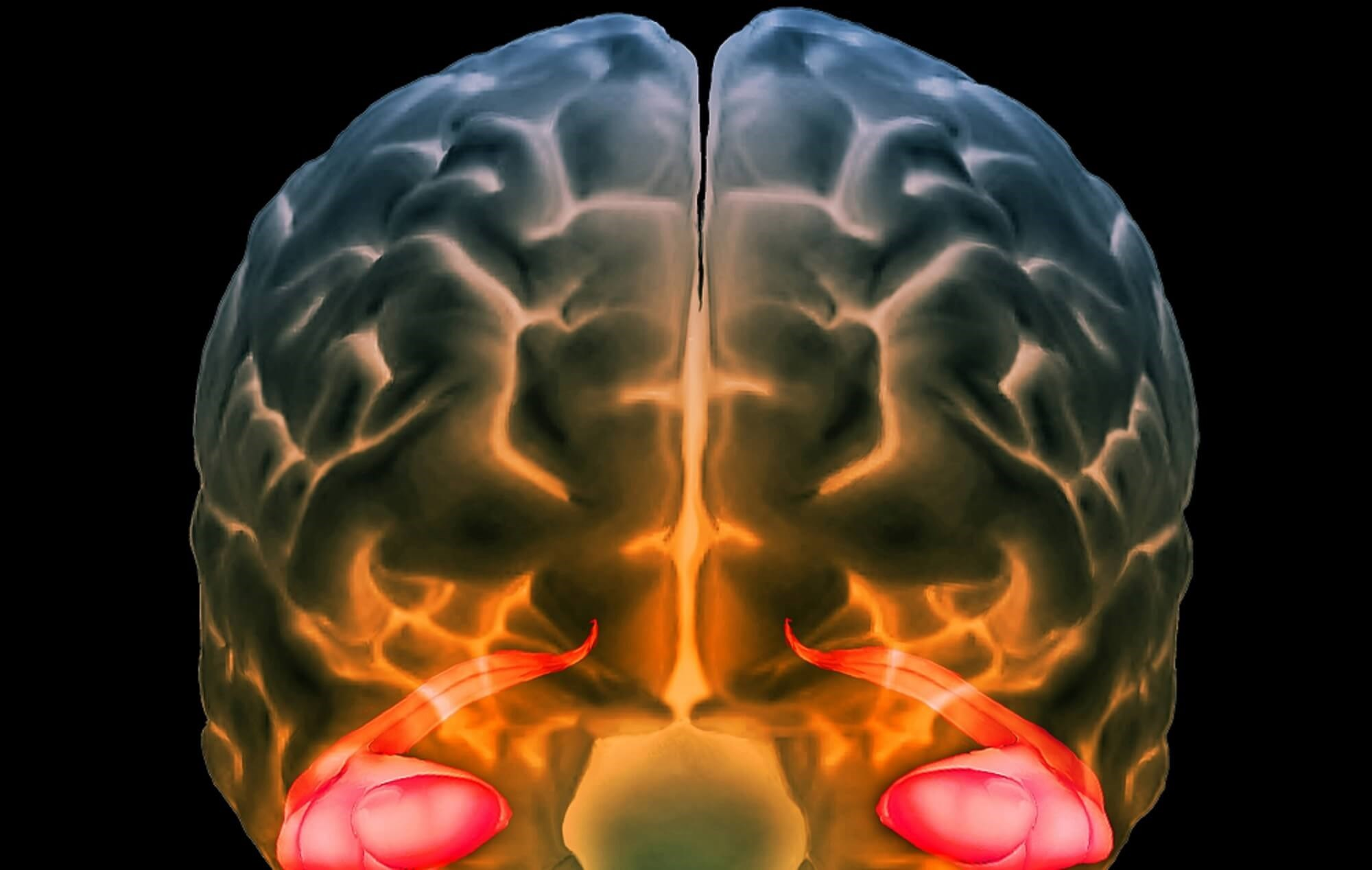 Inflammation appears to be associated with reductions in hippocampal and gray matter volumes in older patients with bipolar I disorder. <i>Credit: ISM / SOVEREIGN - ISM</i>