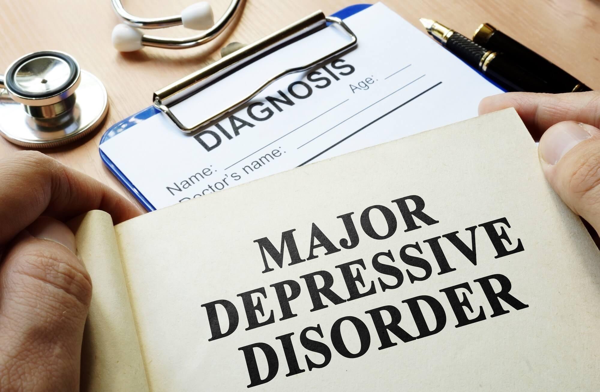 Buprenorphine/Samidorphan Helpful in Refractory Depression
