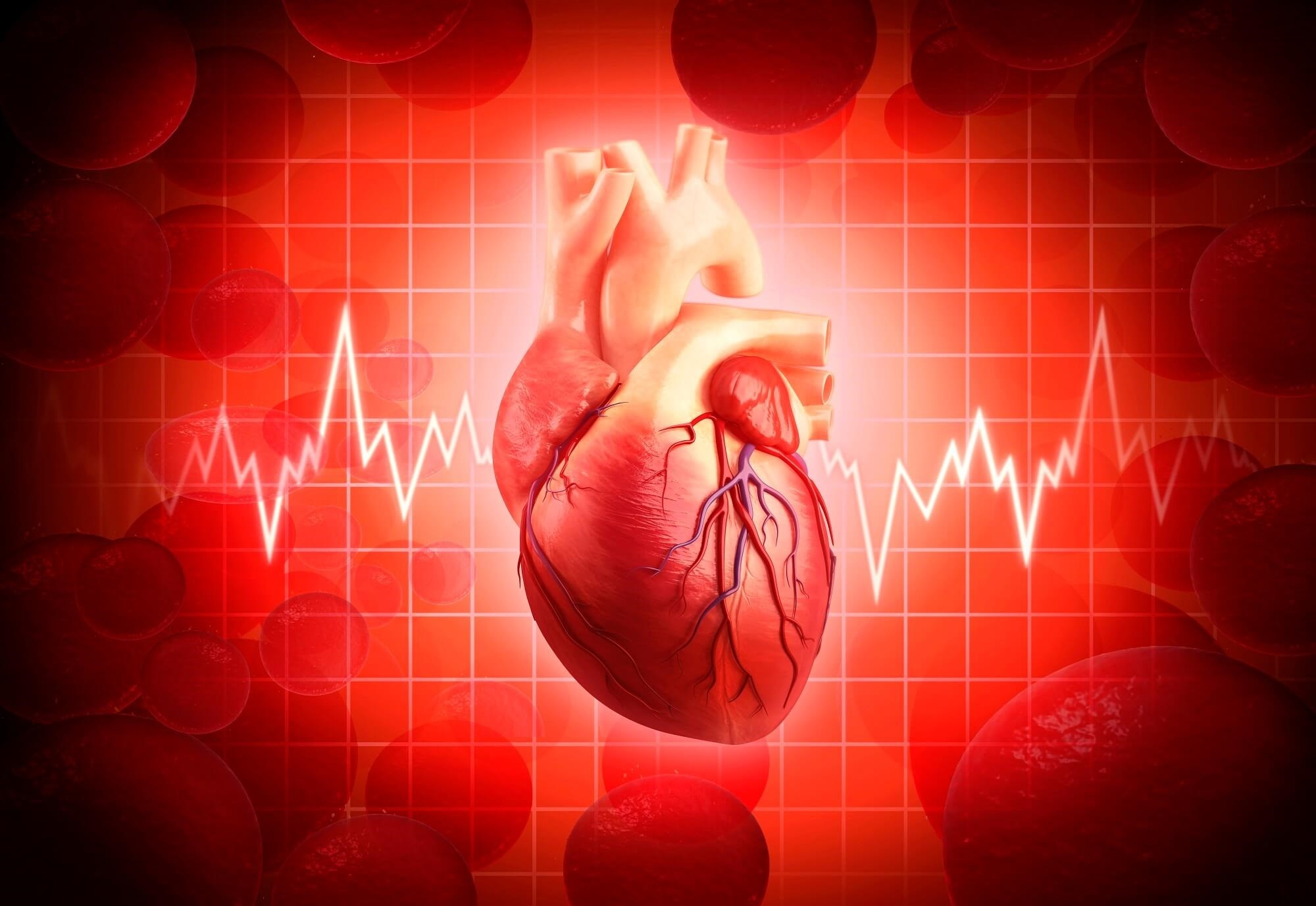 In patients with anxious depression, patients with higher heart rate variability had better outcomes.